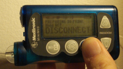 The Paradigm Insulin Pump